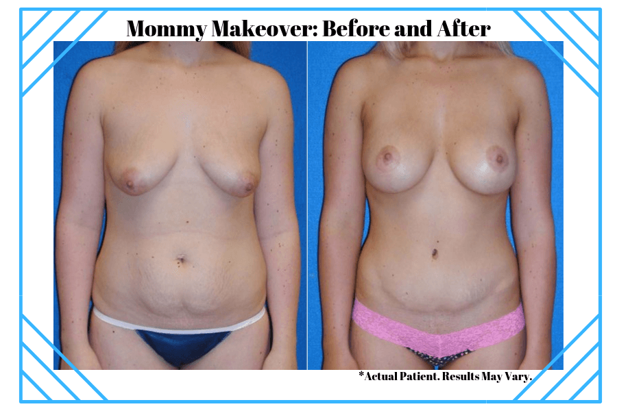 Woman before and after her Mommy Makeover surgery in Sacramento.