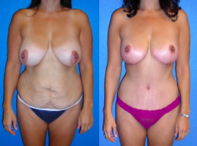 Before and After Mommy Makeover by Dr. Scott Green