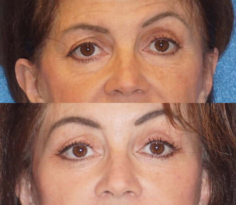 Brow lift before and after patient.
