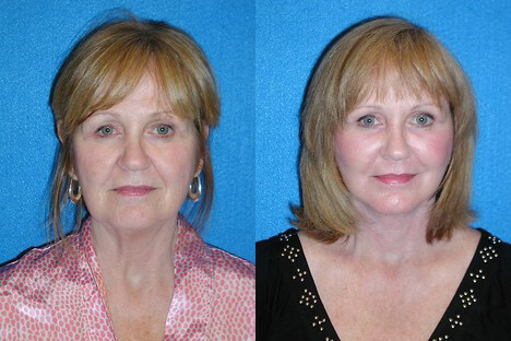 Facelift before and after image.