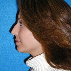 Nose Job Patient Before Photo in Sacramento