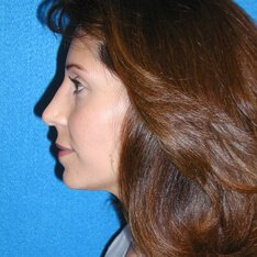 Nose Job Patient After Photo in Sacramento