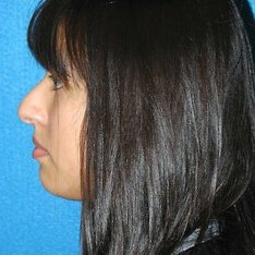 Rhinoplasty Patient Before Photo in Sacramento