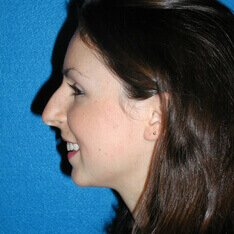 Rhinoplasty Before Photo in Sacramento