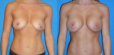 Breast Augmentation Patient in Sacramento
