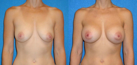 Breast Augmentation Before After in Sacramento
