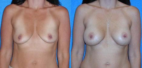 Breast Augmentation Before After in Granite Bay