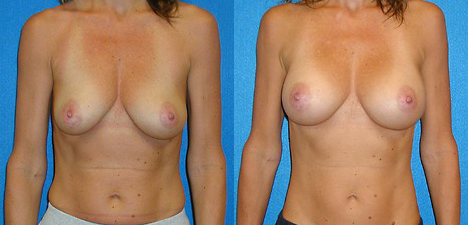 Breast Implant Patient Photo in Sacramento