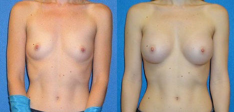 Breast Implant Patient Photo in Granite Bay