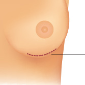 Inframammary Incision for Breast Augmentation