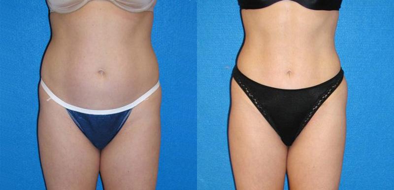 Liposuction Patient in Sacramento