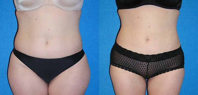 Liposuction Before After in Sacramento