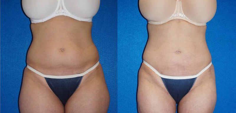 Liposuction Before After in Granite Bay