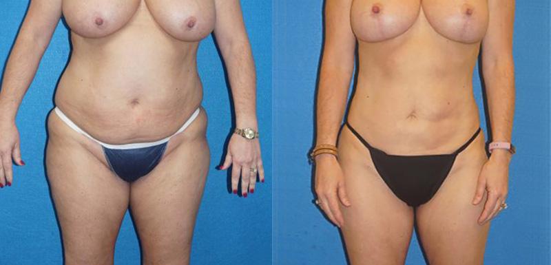 Liposuction Patient Photo in Sacramento
