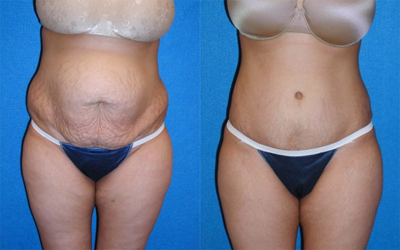 Tummy Tuck Patient in Sacramento