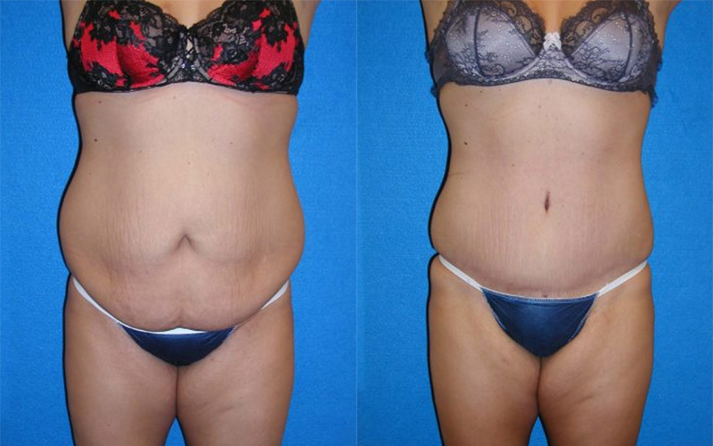 Abdominoplasty Before After in Sacramento