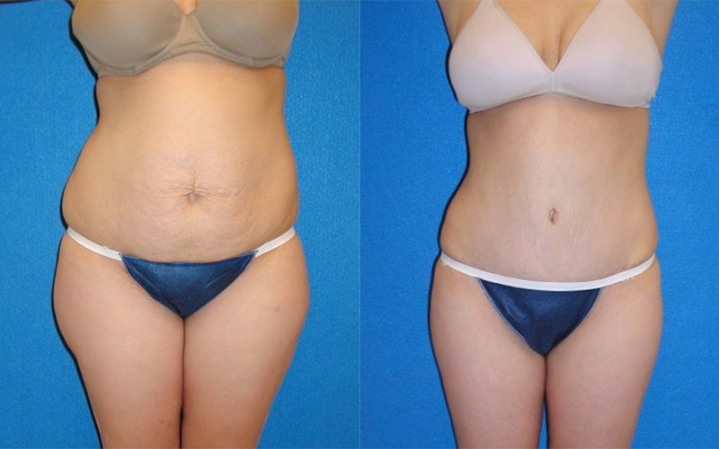 Tummy Tuck Before After in Sacramento