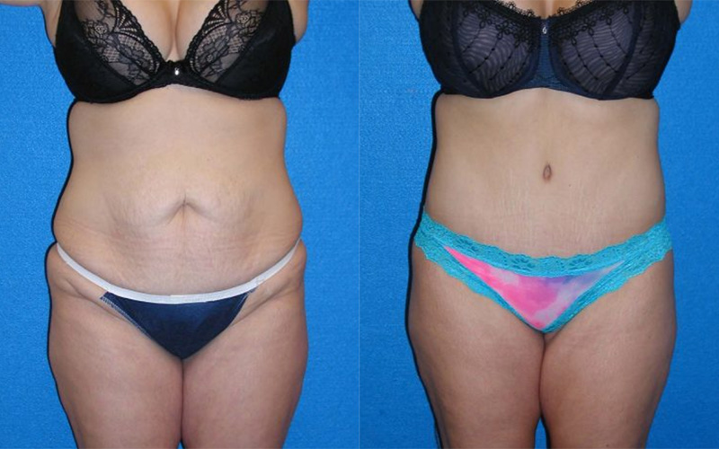 Abdominoplasty Patient Photo in Sacramento
