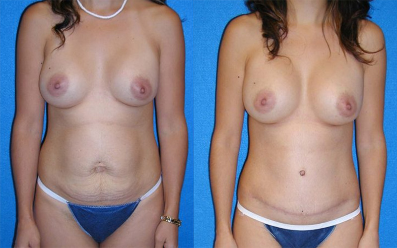 Tummy Tuck Patient in Granite Bay
