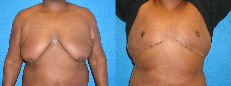 Gynecomastia Surgery Sacramento Granite Bay Dr Scott Green