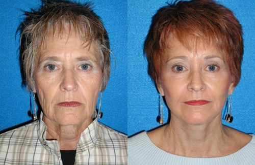 Facelift Patient in Sacramento