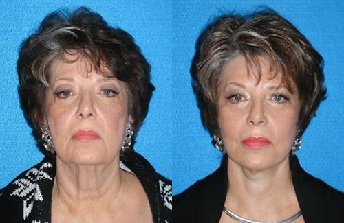 Facelift Before After Photos in Sacramento