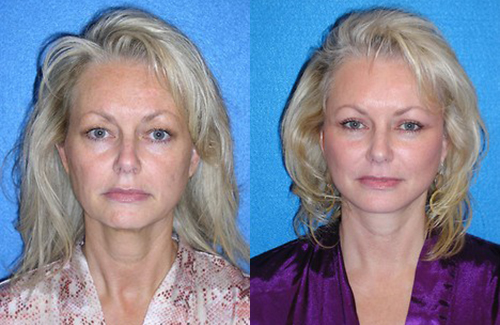 Facelift Patient Photo Sacramento & Granite Bay
