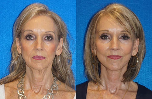 Facelift Patient in Sacramento & Granite Bay