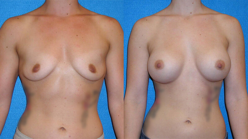Breast Implant Patient in Sacramento