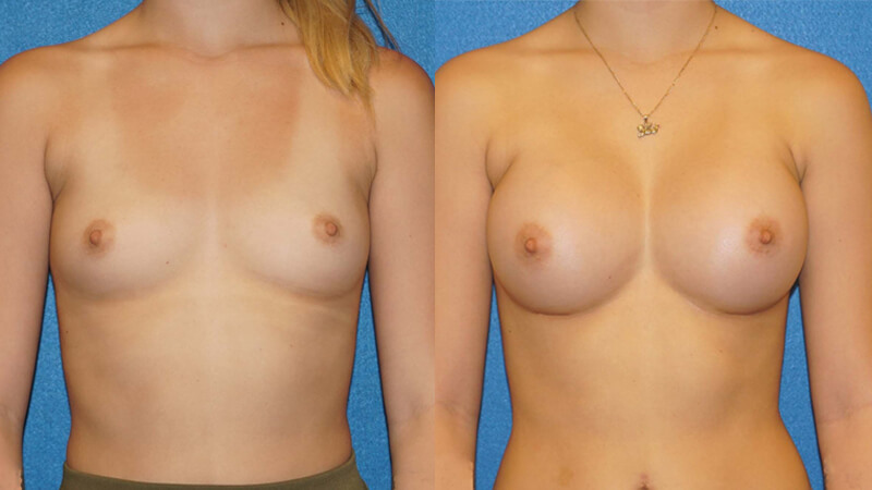 Breast Implant Before After in Sacramento