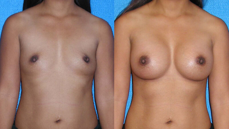 Breast Implant Before After in Granite Bay