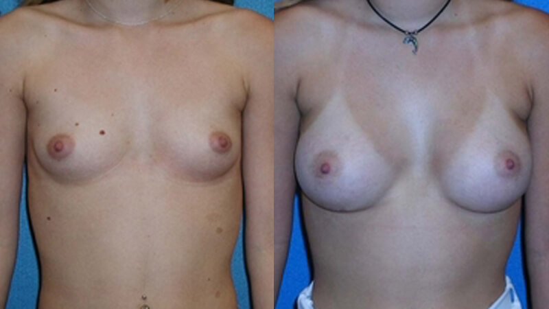 Breast Enlargement Patient Photo in Sacramento