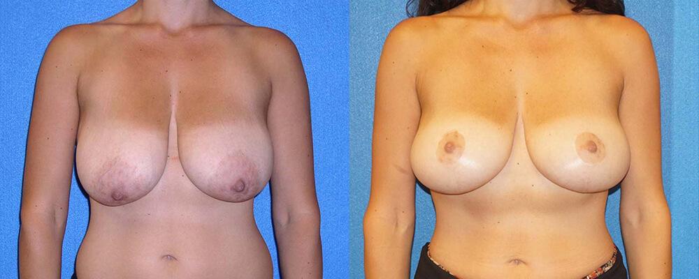 Breast Lift Patient in Sacramento
