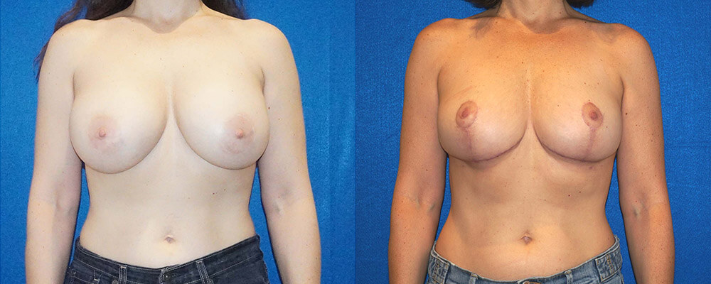 Breast Lift Before After in Sacramento