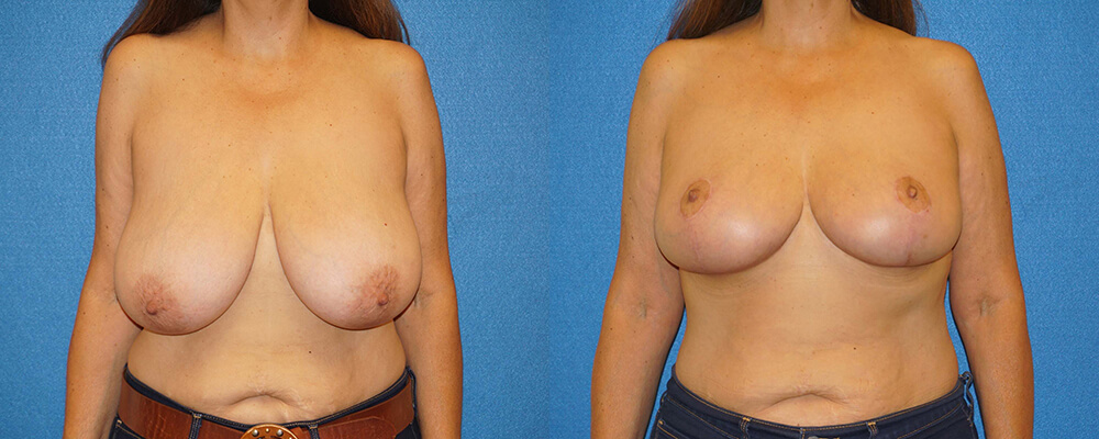Breast Lift Before After in Granite Bay