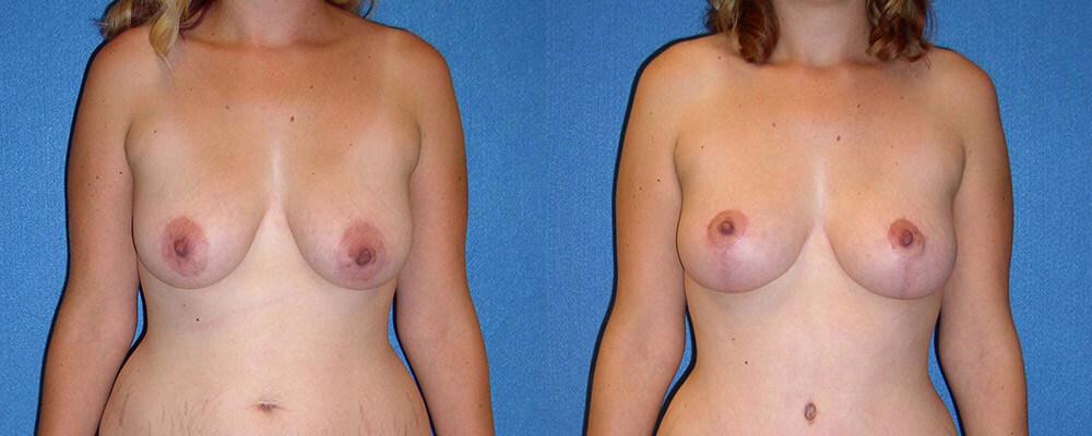 Breast Lift Patient Photo in Sacramento