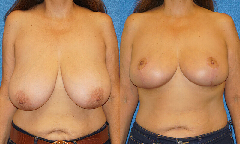 Breast Reduction Before After in Granite Bay