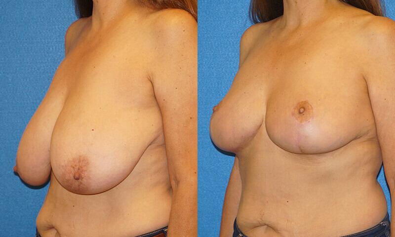Breast Reduction Patient Photo in Sacramento