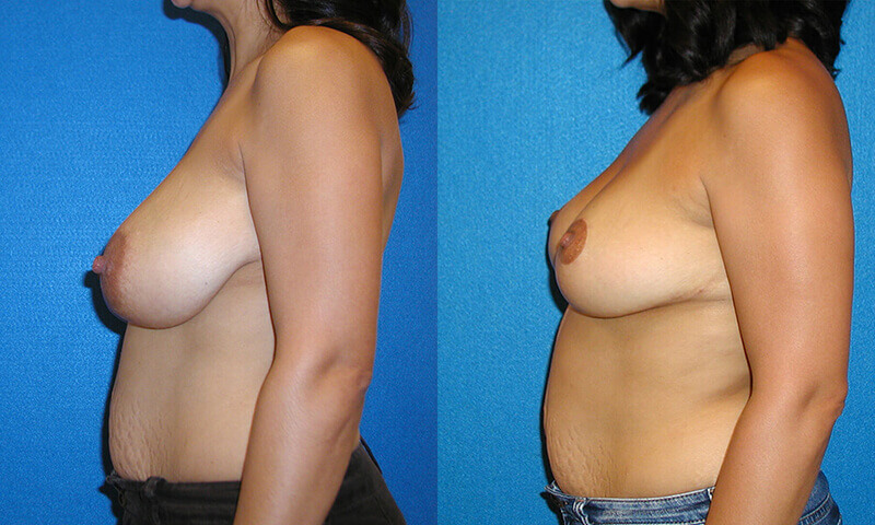 Breast Reduction Before After in Sacramento