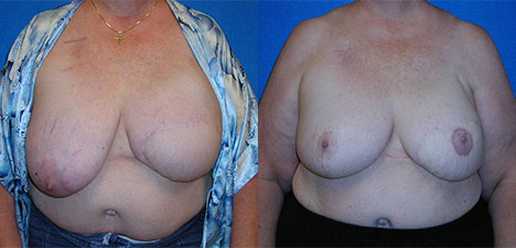 Breast Reconstruction Patient in Sacramento