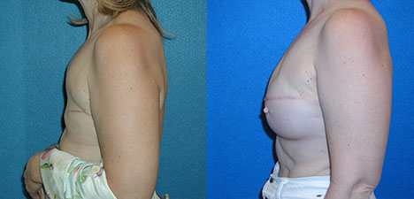 Breast Reconstruction Patient Photo in Granite Bay