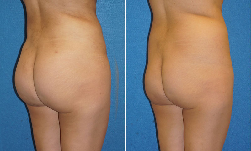 Butt Augmentation Patient Photo in Sacramento
