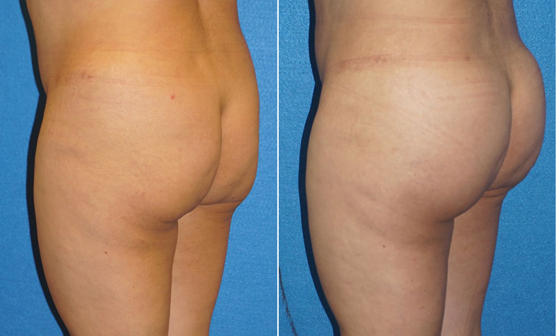 Butt Augmentation Before After in Granite Bay