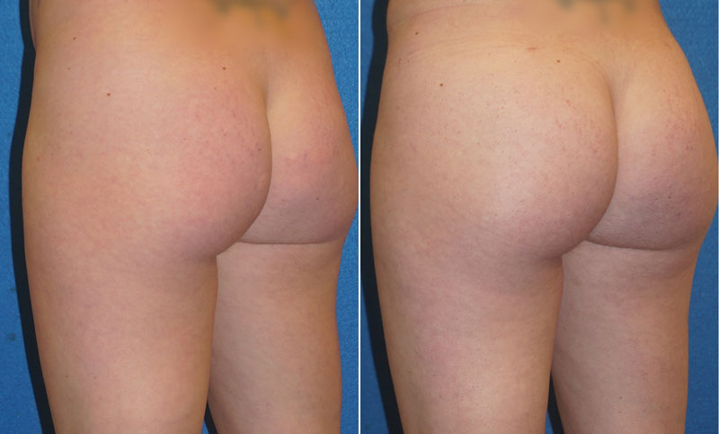 Butt Augmentation Before After in Sacramento