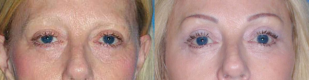 Brow Lift Patient in Sacramento