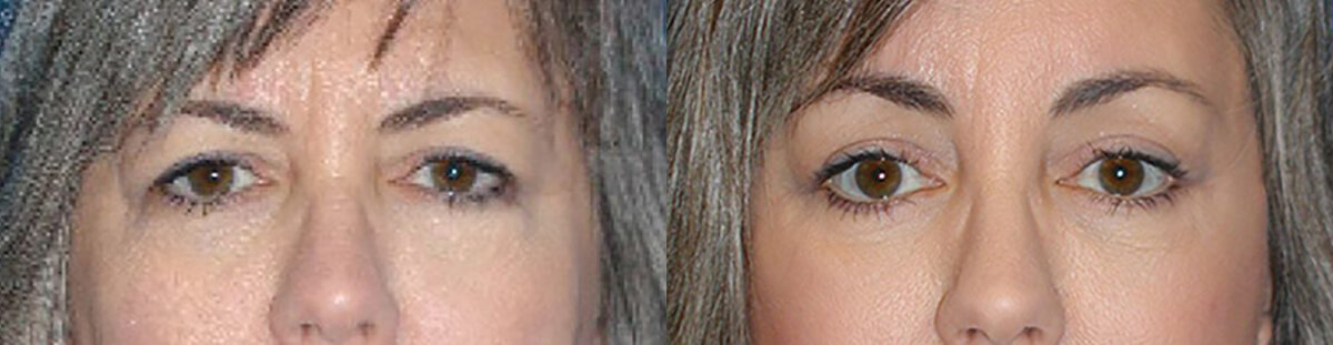 Brow Lift Before After in Sacramento