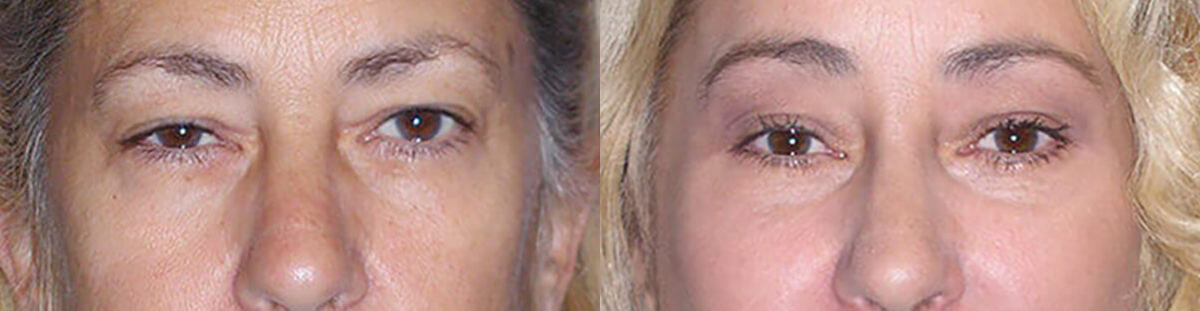 Brow Lift Before After in Granite Bay