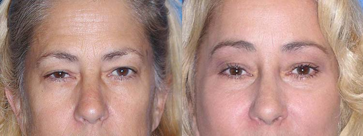 Blepharoplasty Before After in Sacramento