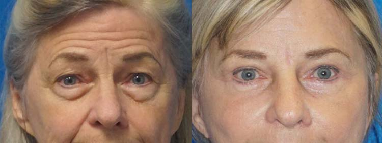 Eyelid Surgery Patient in Sacramento
