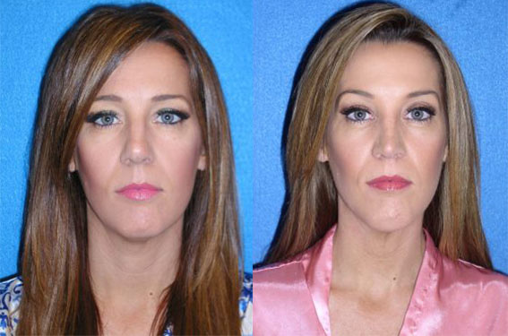 Chin Augmentation Before After in Sacramento & Granite Bay